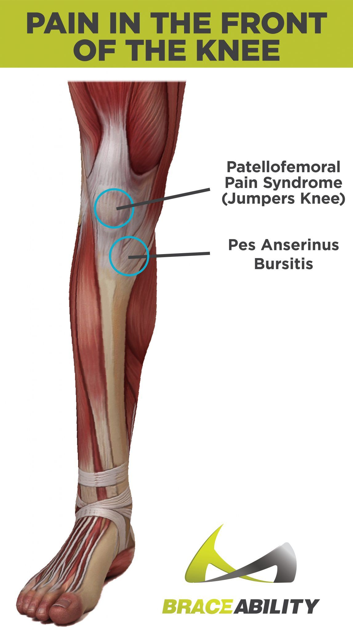 Types of Knee Pain: Anterior, Posterior, Medial & Lateral Knee Pain