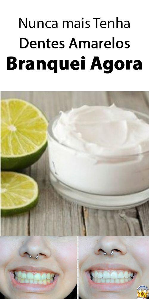 Bicarbonato De Sodio Para Clarear Os Dentes Naturalmente Com