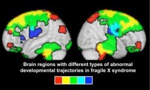 Fragile X syndrome is the most common known cause of inherited intellectual disability and autism. Now, researchers using advanced, noninvasive imaging techniques have shown how the brains of very young boys with fragile X syndrome differ from those of young boys without it, providing critical information for the development of treatments for the condition.