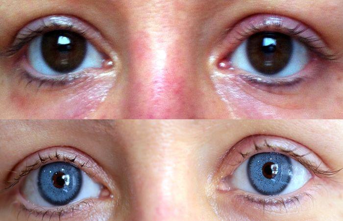 Augenchirurgie mit permanent Augenfarbe ändern - BrightOcular