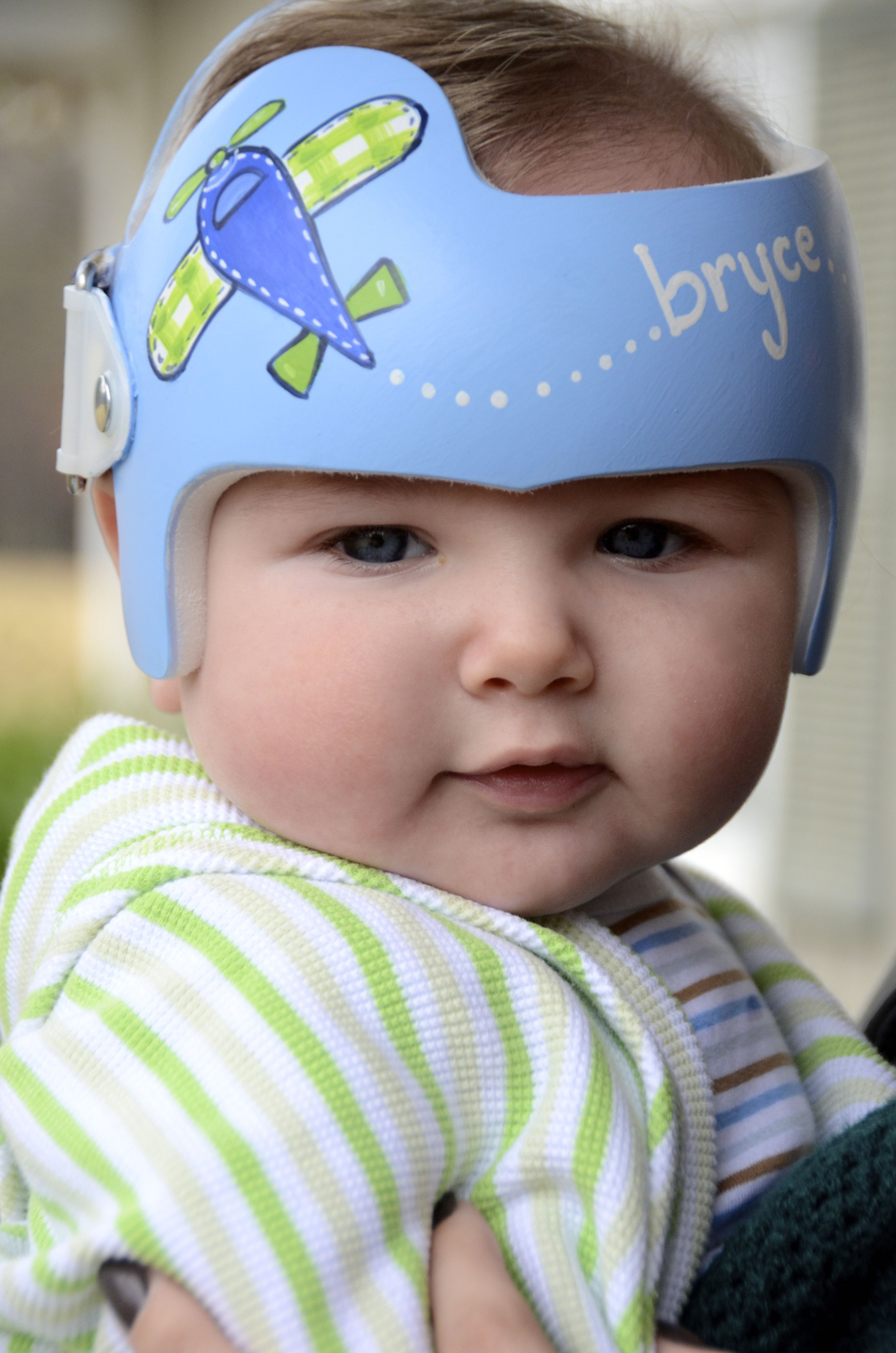 Pin By Leigh Gibson On Cranial Bands Helmets Doc Band Baby Helmet Baby Helmet Design
