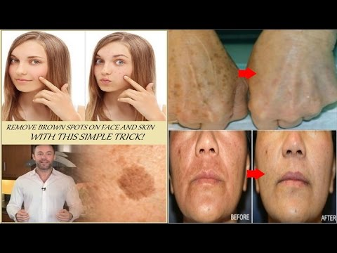 252 remove brown spots on face and skin with this simple