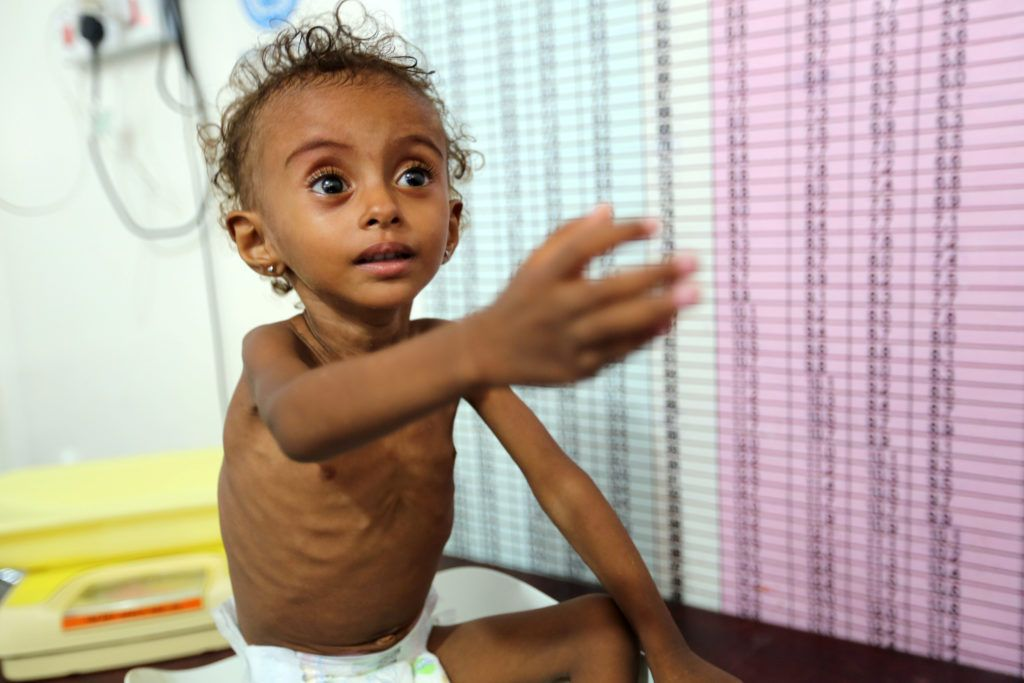 Yemen S War Must End To Address Starvation Un Food Aid Chief Says Yemen Humanitarian Palestine People
