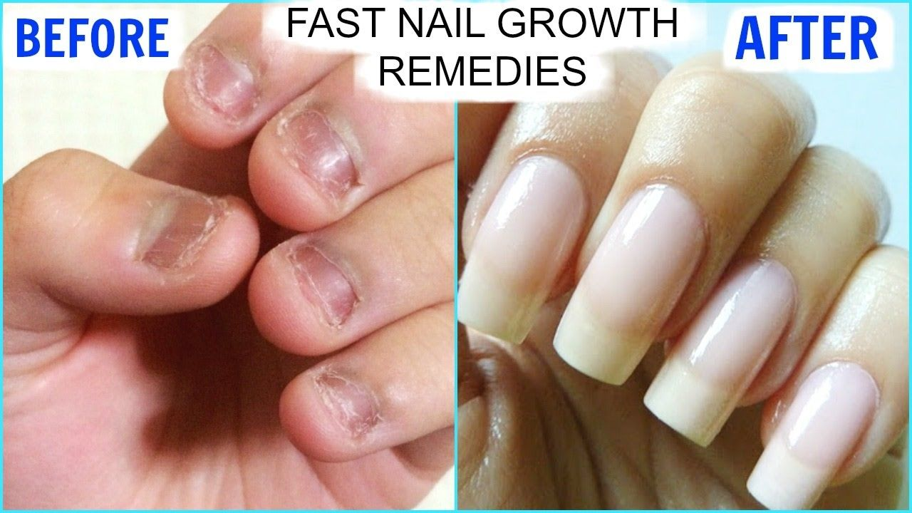 How To GROW Long Strong Nails Fast At Home | SuperPrincessjo ...