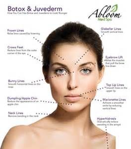 Botox Injection Map - Bing images | botox/dermal filers
