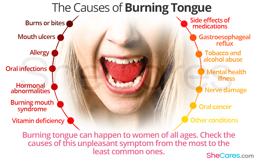 Causes of Burning Tongue Most Common to Less Common