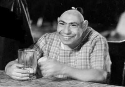 """Schlitze Surtees (1901-1971) was born with with microcephaly, a neurodevelopmental disorder that left him with an unusually small brain and moderate to severe mental retardation.  Those with microcephaly were often billed as 'pinheads', but Schlitze was known as """"The Last of the Aztecs"""".  He was often presented as being a woman.  He loved to sing and dance and was a good mimic.  He was a tremendous hit and worked for several famous circuses.  He appeared in the movies Freaks and The…"""