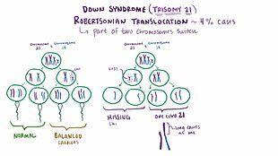 File:Down syndrome video webm | Misc | Cell cycle, Down