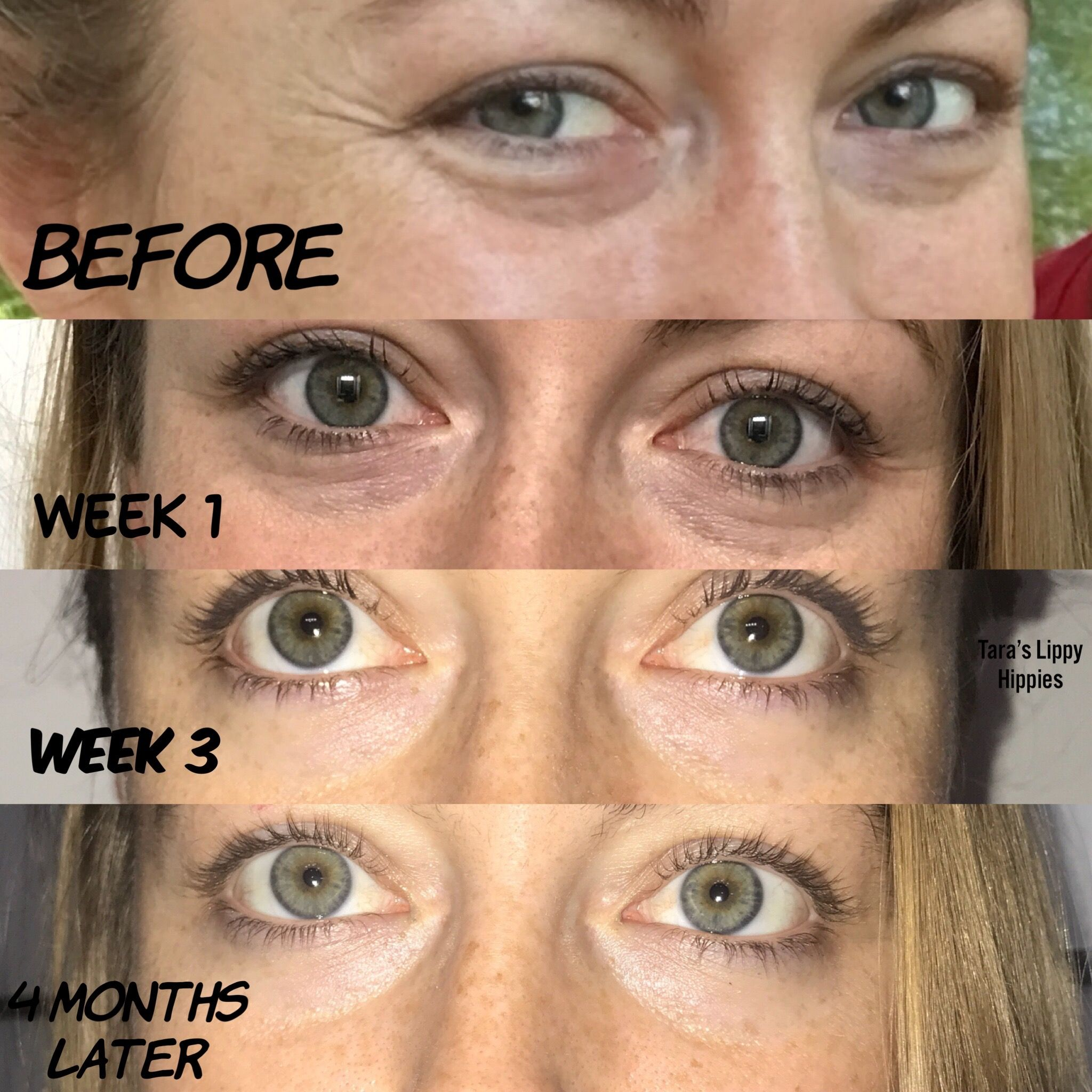Before And After Results Eye Cream Dark Eye Circle Senegence