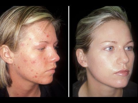 A Video Discussing A Method To Clear Acne In One Week Best Acne Treatment Acne Treatment Acne Cure