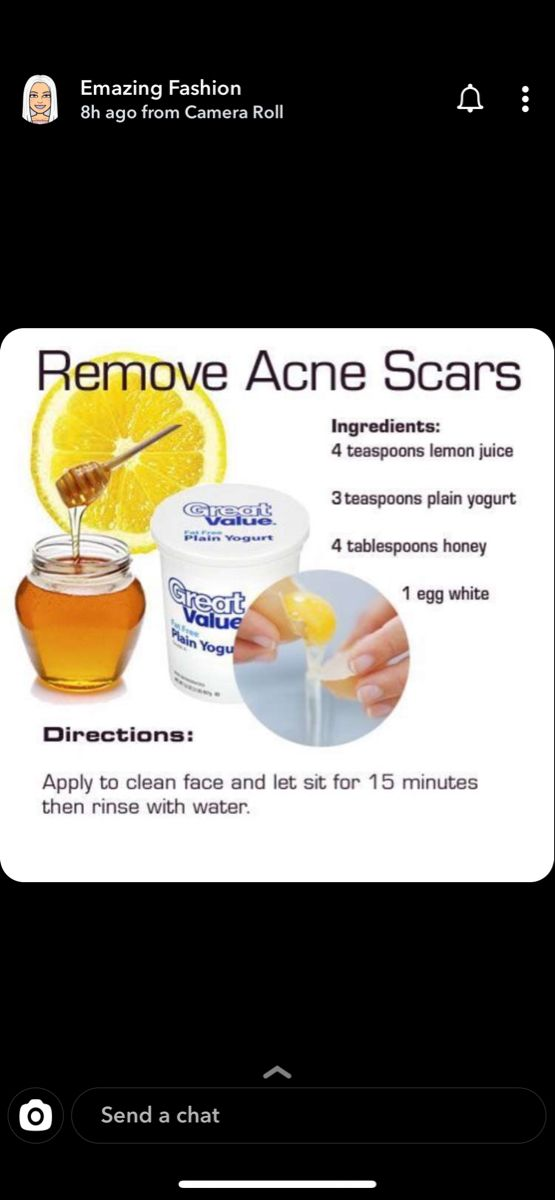 Pin by Celeste ️ uwu on Health and fitness | Acne scar