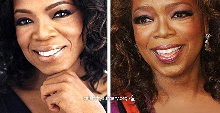 Oprah winfrey facial tucks necessary words