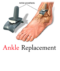 Ankle Fusion Is A Surgical Practice That Does Away With The Faces Of