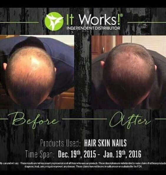 Pin by Roxie Broman on It works: Hair Skin Nails & Results ...