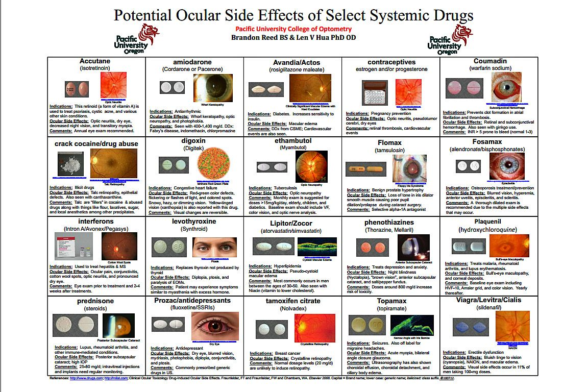 Pin By Emily Kendall On Eye Love Eyes Side Effects Eyes