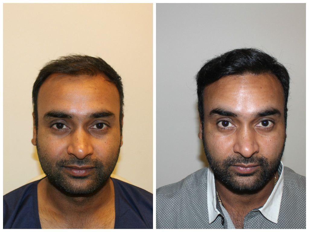 Hair Transplant In Lahore Hair Transplant Best Hair Transplant Laser Hair Removal
