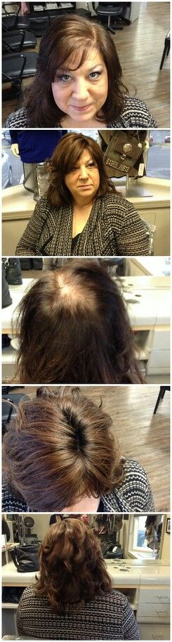 thinning hair?  Try Tress Couture hair toppers, by Hotheads extensions...add volume, and turn thin hair into massive hair!  i can customize just about anything to fit your needs!   562-746-6592 Becky Mitchell  (specializing in Extensions for over 25 years)