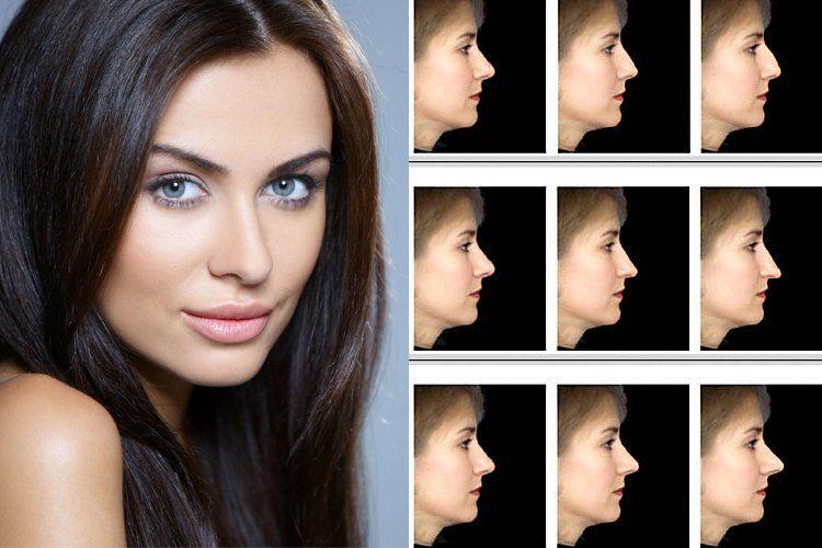 Different Shapes Schonheit Grosse Nasen Herzogin Von Cambridge