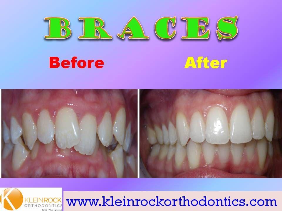 Severe overbite correction After braces, Braces
