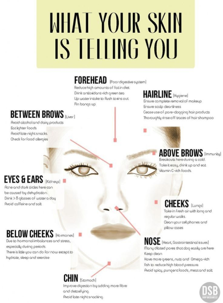 #Plagued by Spots and Pimples? Help is at Hand with Some Useful Acne Infographic.... ** Have a look at even more at the photo