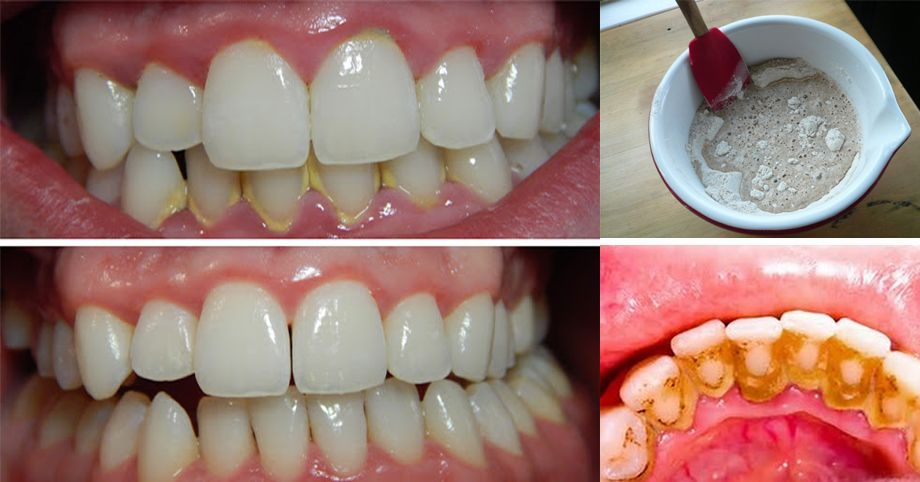 5 Minutes Tricks To Get Rid Of Dental Plaques Without