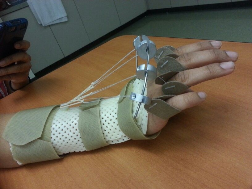 Dynamic splint ot pinterest occupational therapy
