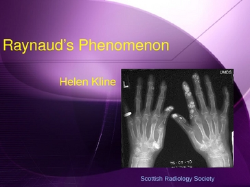 a study on the raynauds condition This 25-year-old woman presented with a rash on her cheek, present on waking and lasting a few hours, which had occurred on other occasions she had a seven-year history of typical, triphasic appearance raynaud's disease affecting her hands, and previous chilblains of her toes, with general.
