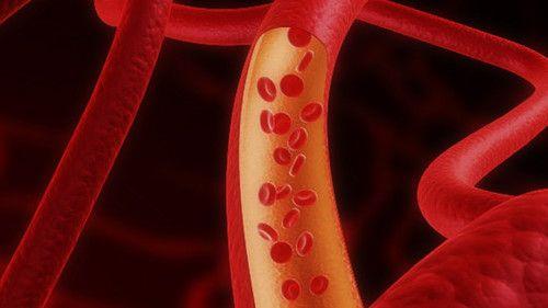 La vitamina D protege las arterias