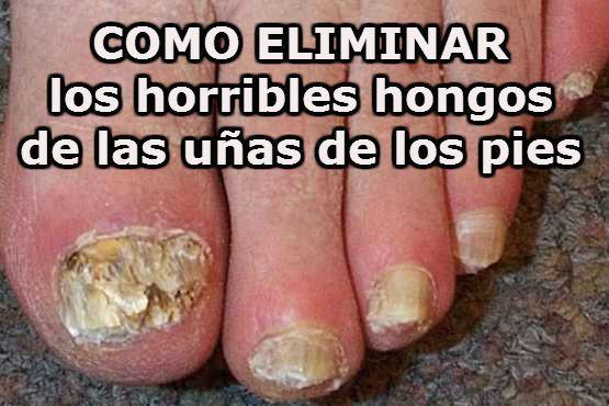 Sloenie de las uñas y el tratamiento