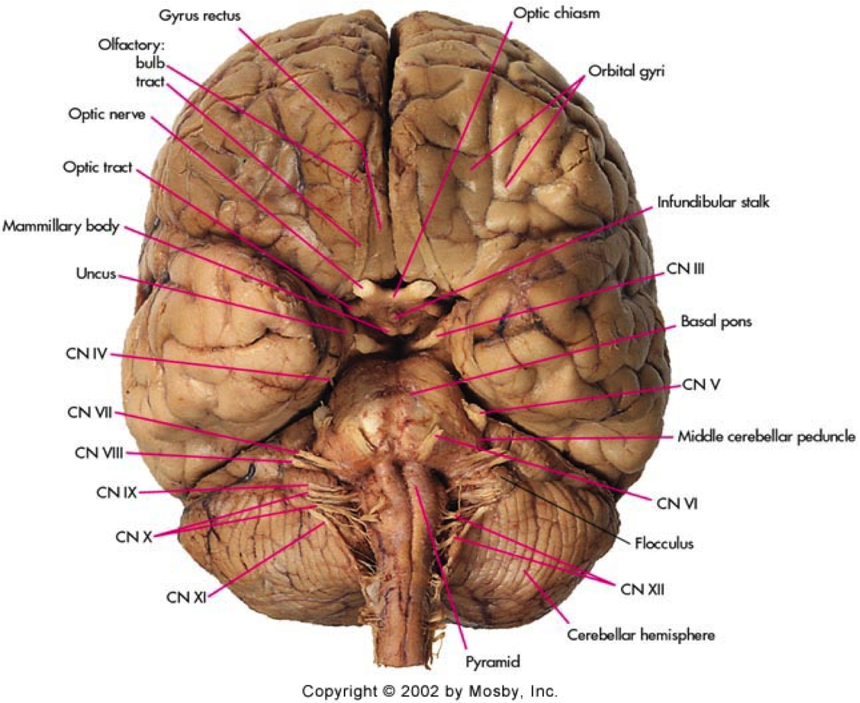 cranial nerves brainstem - Google Search | Cranial nerves ...