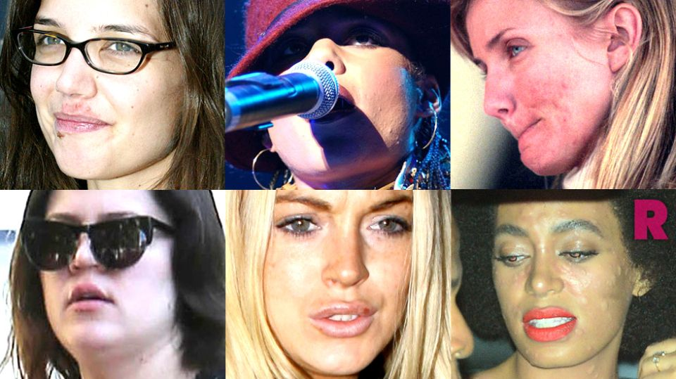 Nobody S Perfect Kim S Psoriasis Brit S Zits Lindsay S Cold Sores Celebrity Skin Problems In 13 Photos Celebrity Skin Skin Problems Skin