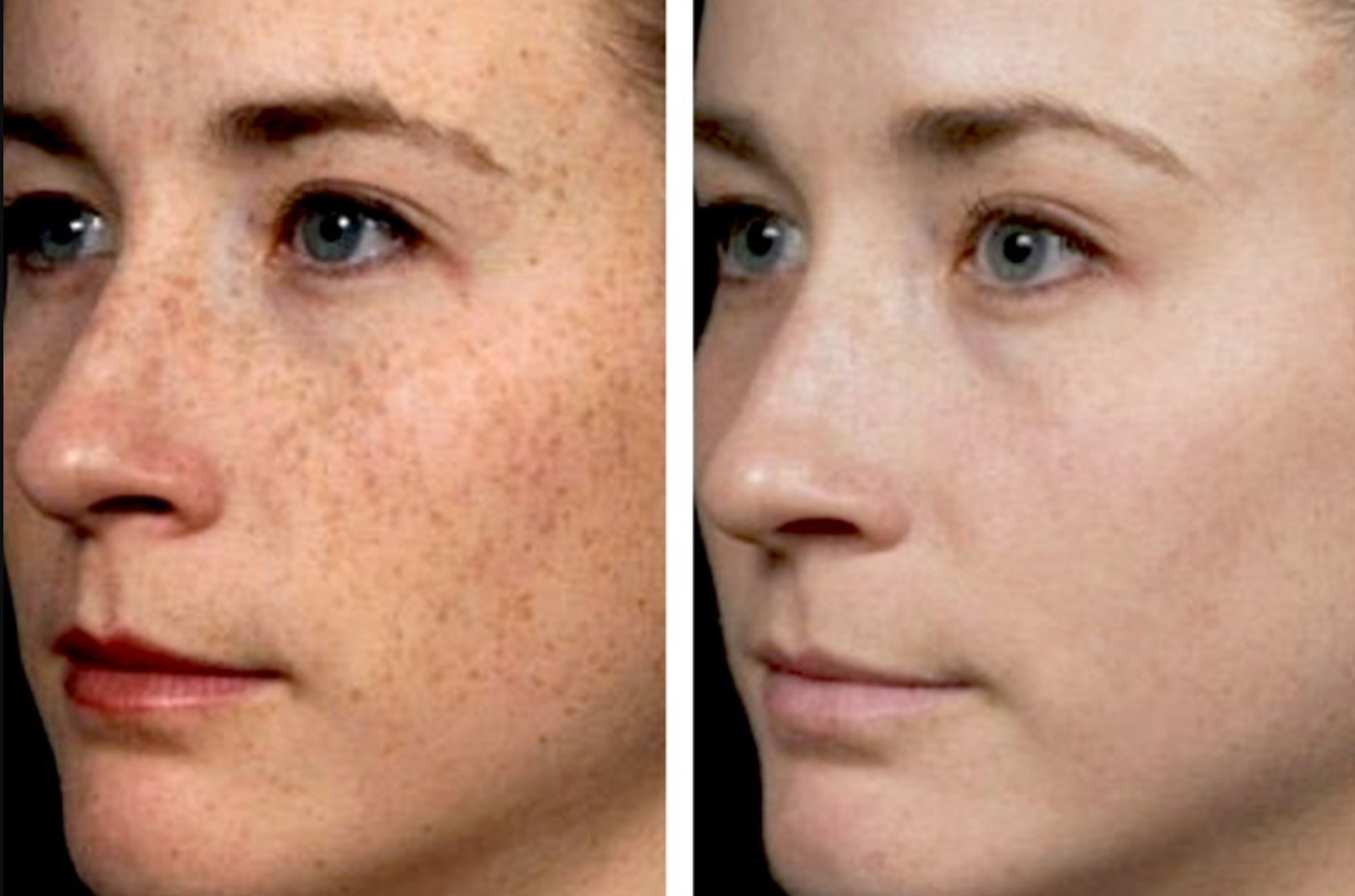 Fraxel Lasers Target Deep In The Skin To Successfully Improve The Appearance Of Skin Pigmentation And Scarrin Age Spot Removal Spots On Face Age Spots On Face