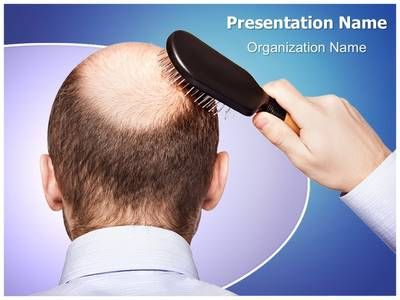 Bald Human Alopecia Powerpoint Presentation Template Is One