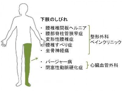 足のしびれ 原因 治療 足がしびれる 健康 坐骨神経痛 痺れ
