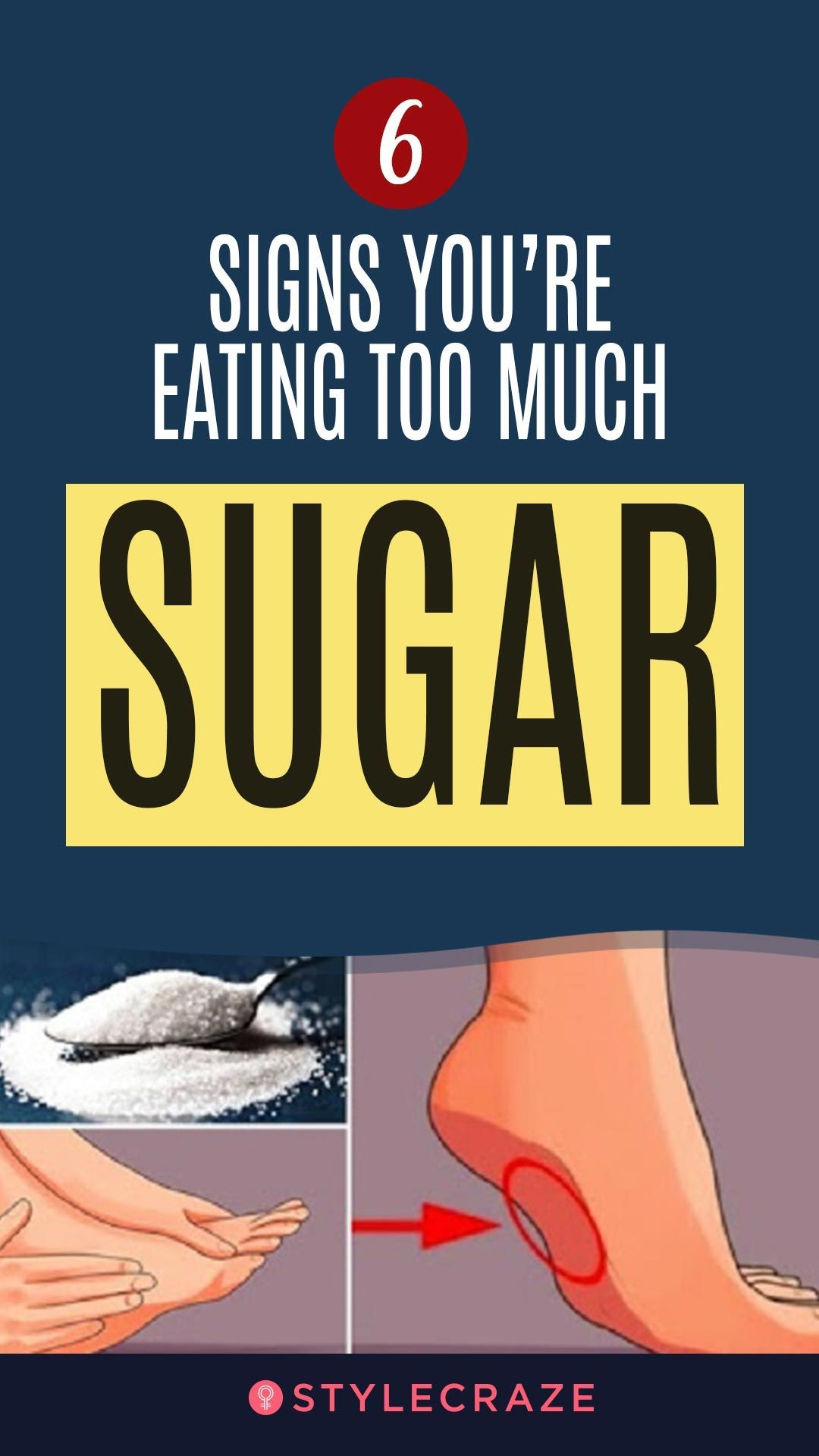 6 Signs You're Eating Too Much Sugar