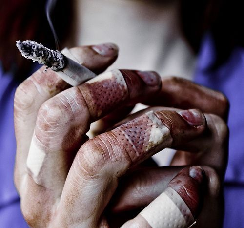Whatever it takes.  Cigarettes and finger plasters