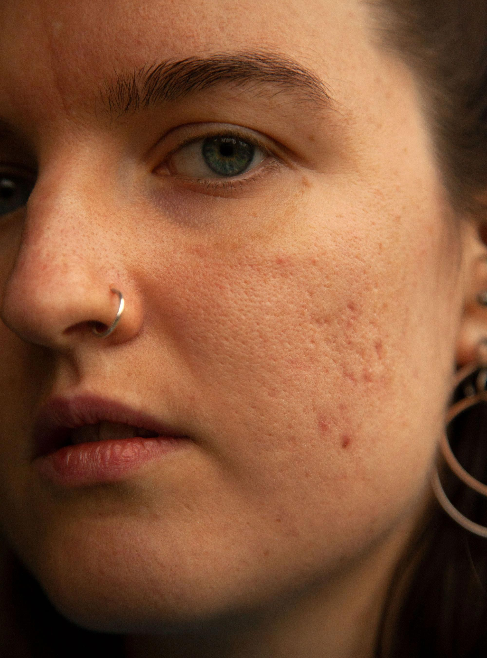 How to get rid of hormonal acne according to top