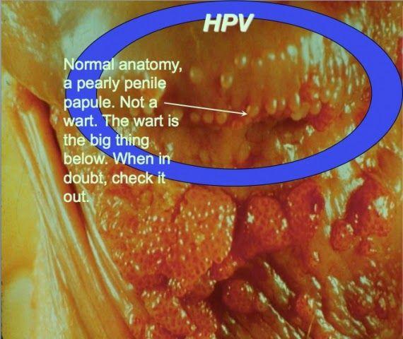hpv versus herpesz