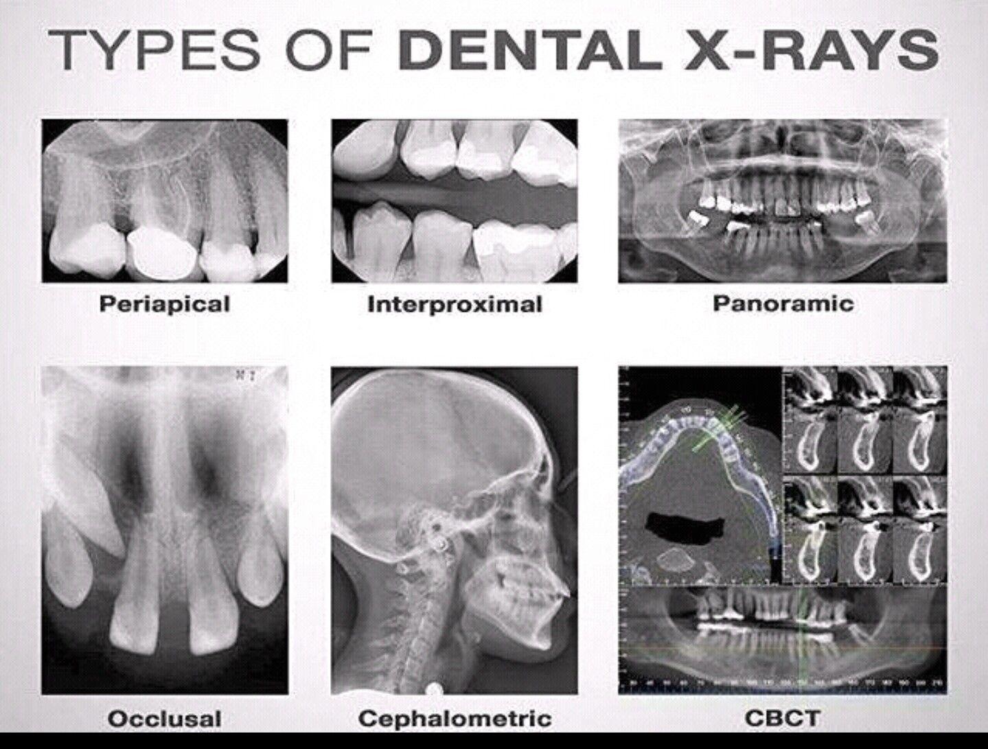 Types of Dental X-Rays | Dental Assisting | Pinterest | Odontología ...