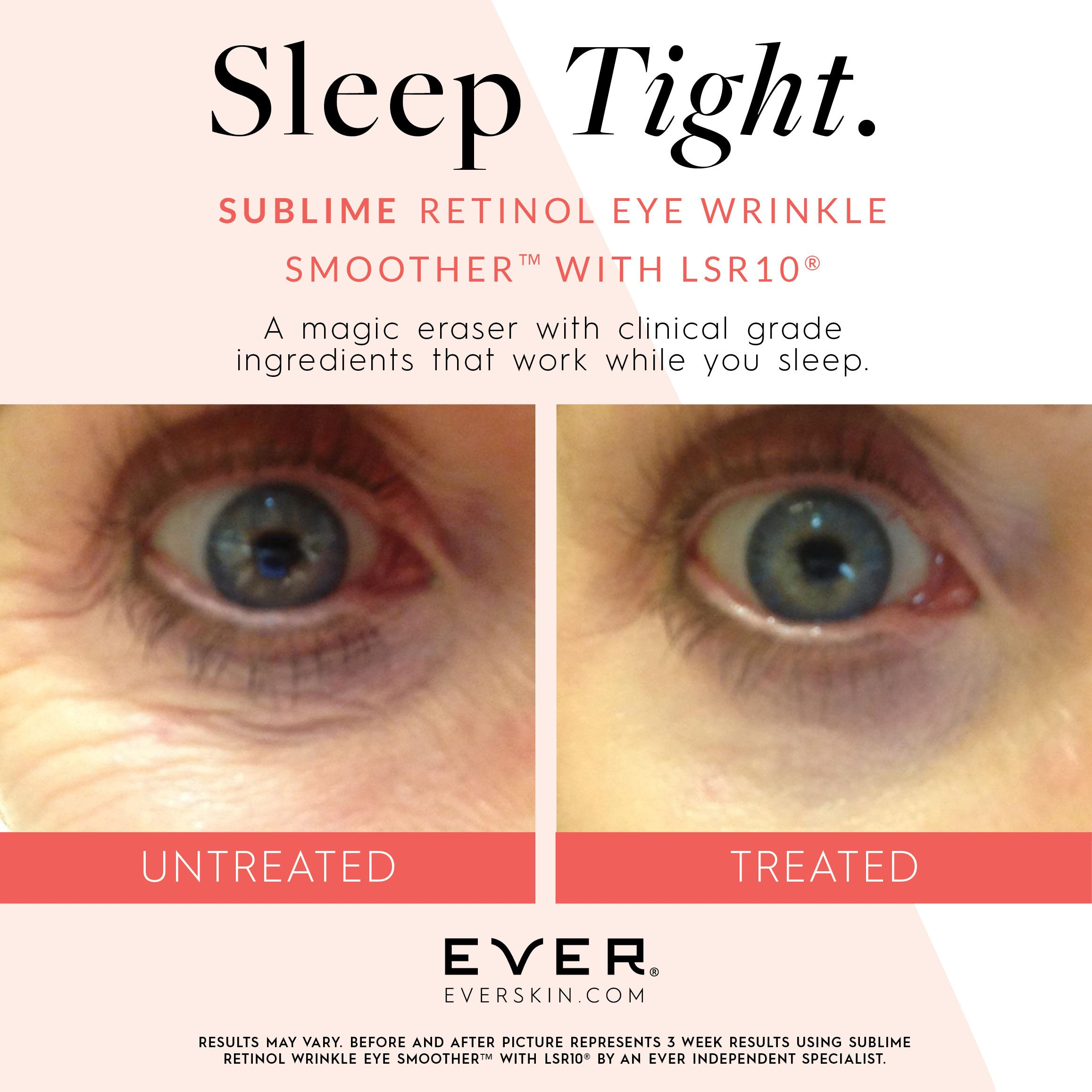 Sublime Retinol Eye Wrinkle Smoother Skin Care Dark Spots Skin
