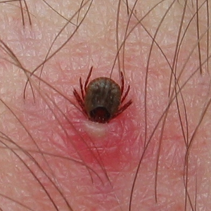 Dog Tick Bites On Humans Pictures