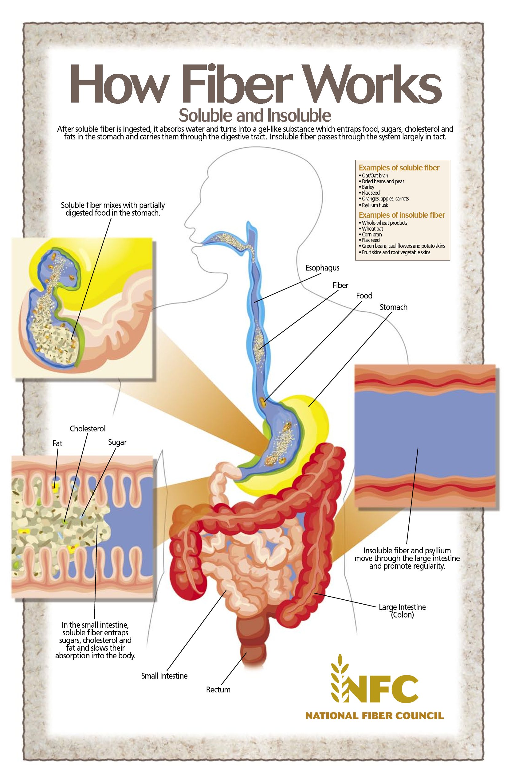 How Fiber Works   Anatomy   Pinterest   Infographic, Heart disease ...