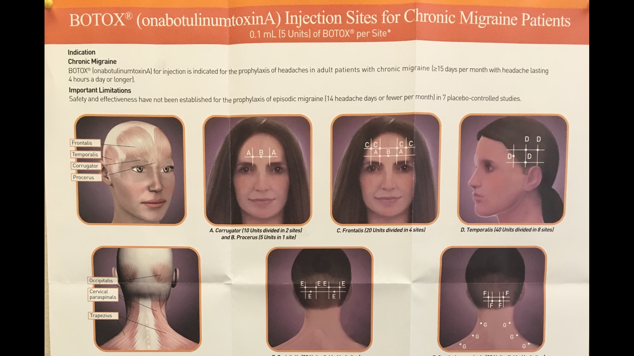 Botox Facial Muscle Diagram Bronchial Tree Is Used As A Alternative Treatment For Tmj Temporo
