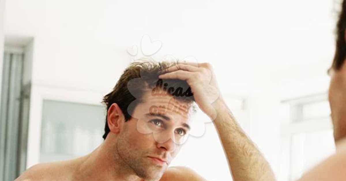 Incrível! 10 truques para acabar com a queda de cabelo masculino - # #Calvície #crescimentodoscabelos #homens