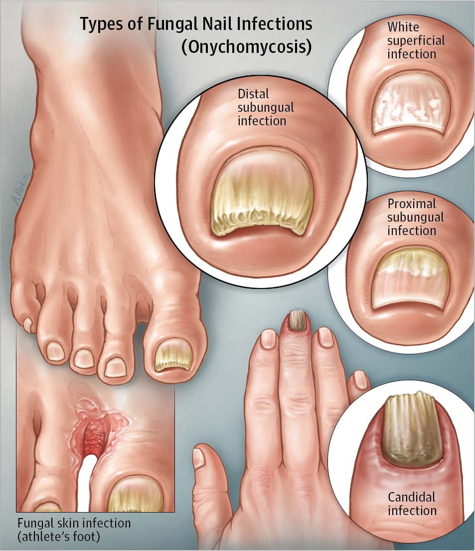 Fungal Nail Infection JAMA. 2017;317(5):546. doi:10.1001/jama.2016.20617 | Nail  fungus cure, Fungal nail treatment, Toenail fungus cure
