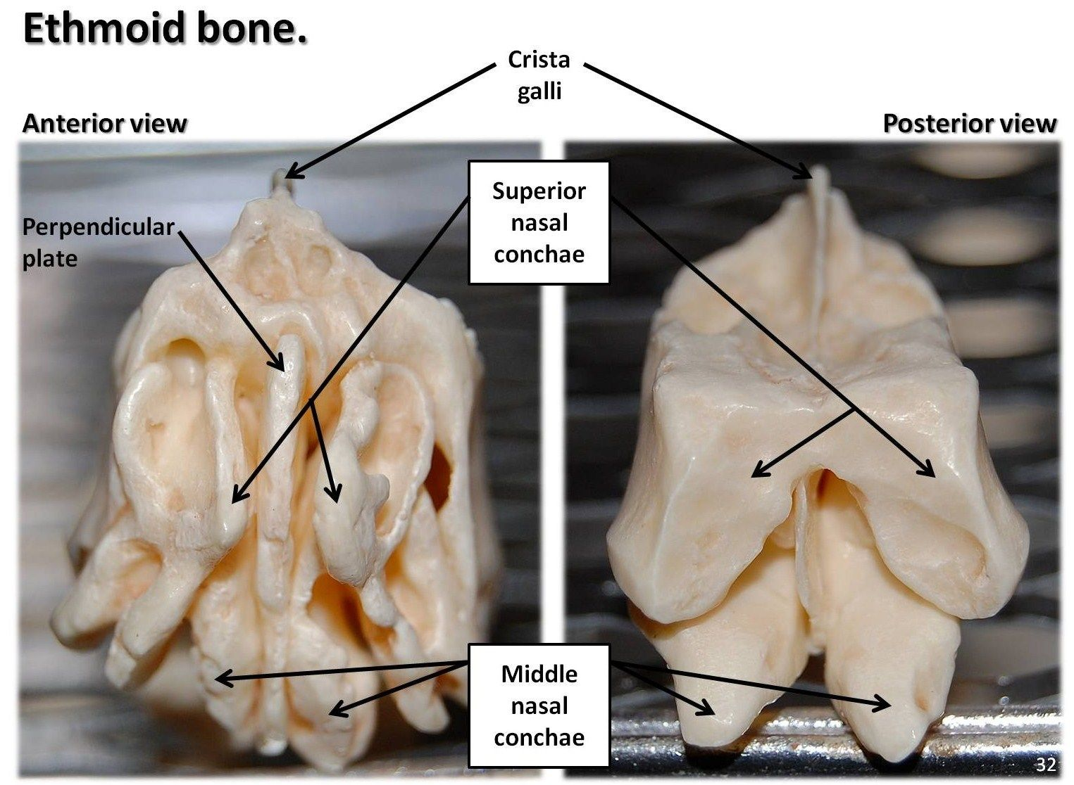 Ethmoid Bone | Ethmoid bone, anterior and posterior views with ...