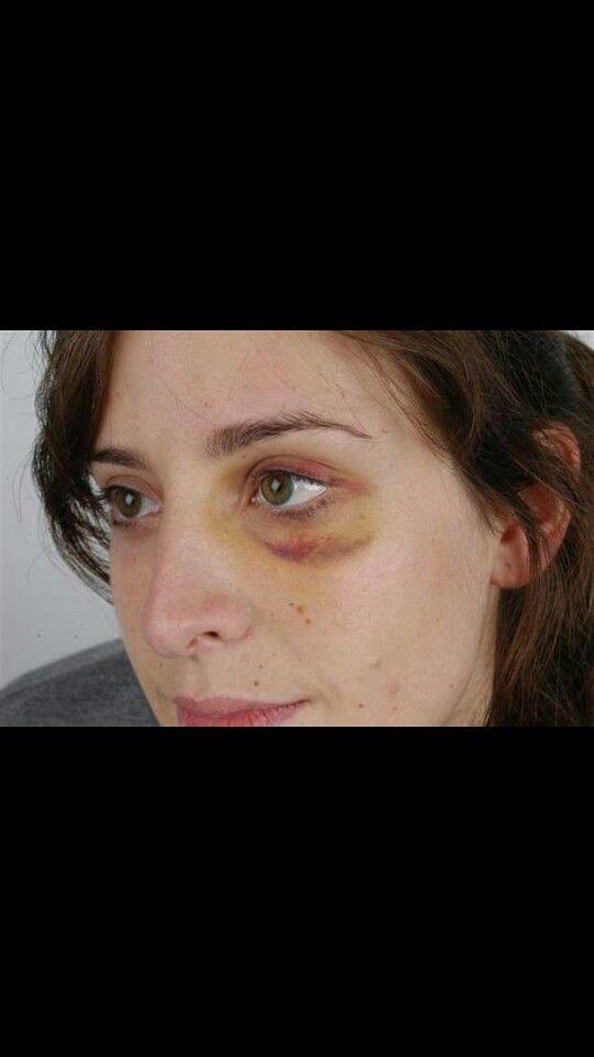 f78b91828824b3aa4338b77f2fe64e46 - How To Get Rid Of Bruises On Face Overnight
