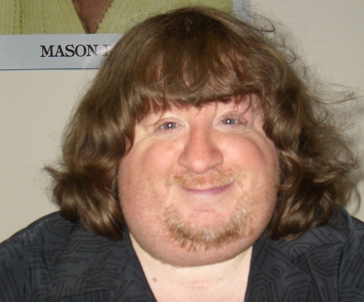 Pictures of fat ugly men