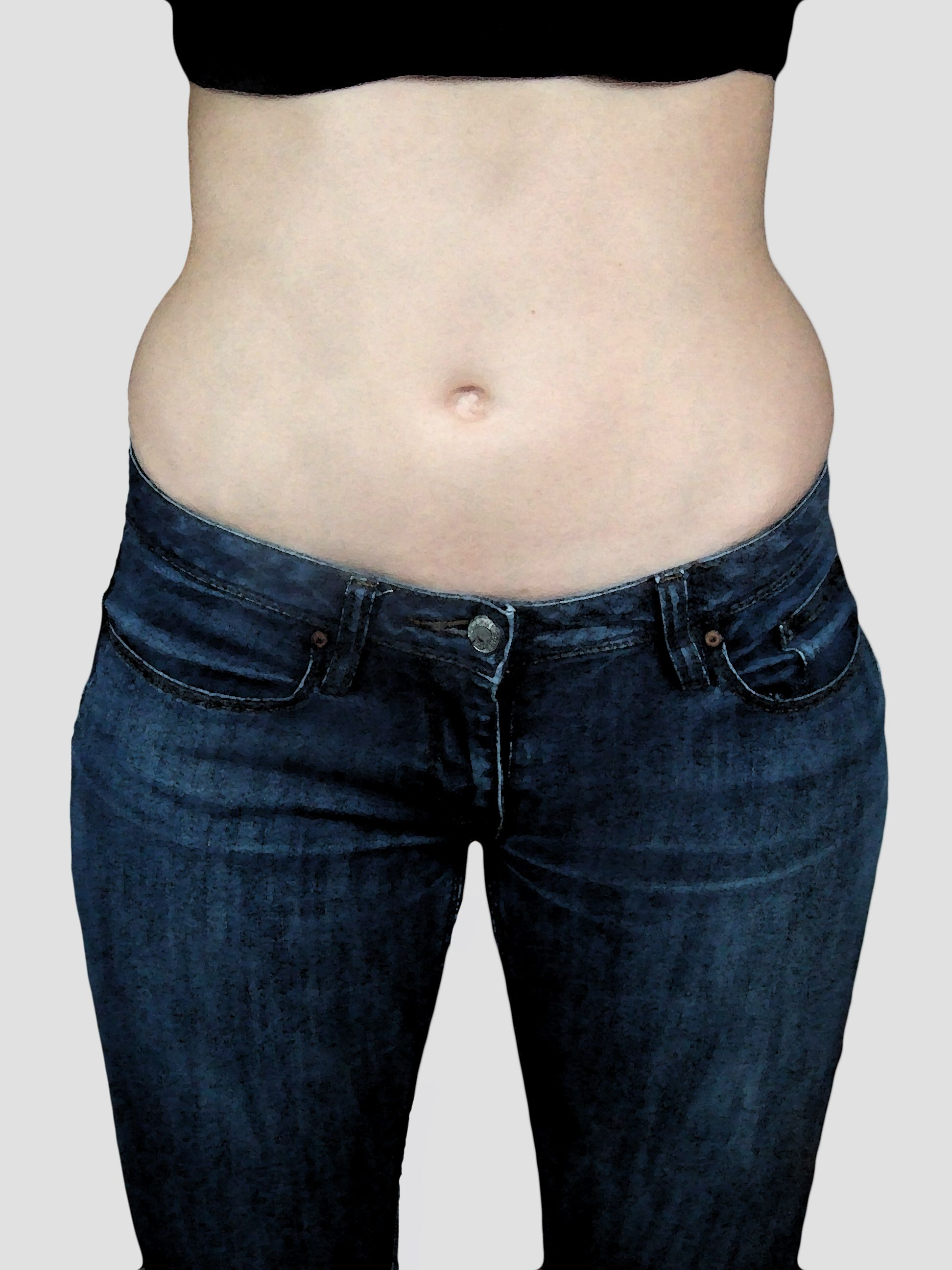 lose cellulite after weight loss