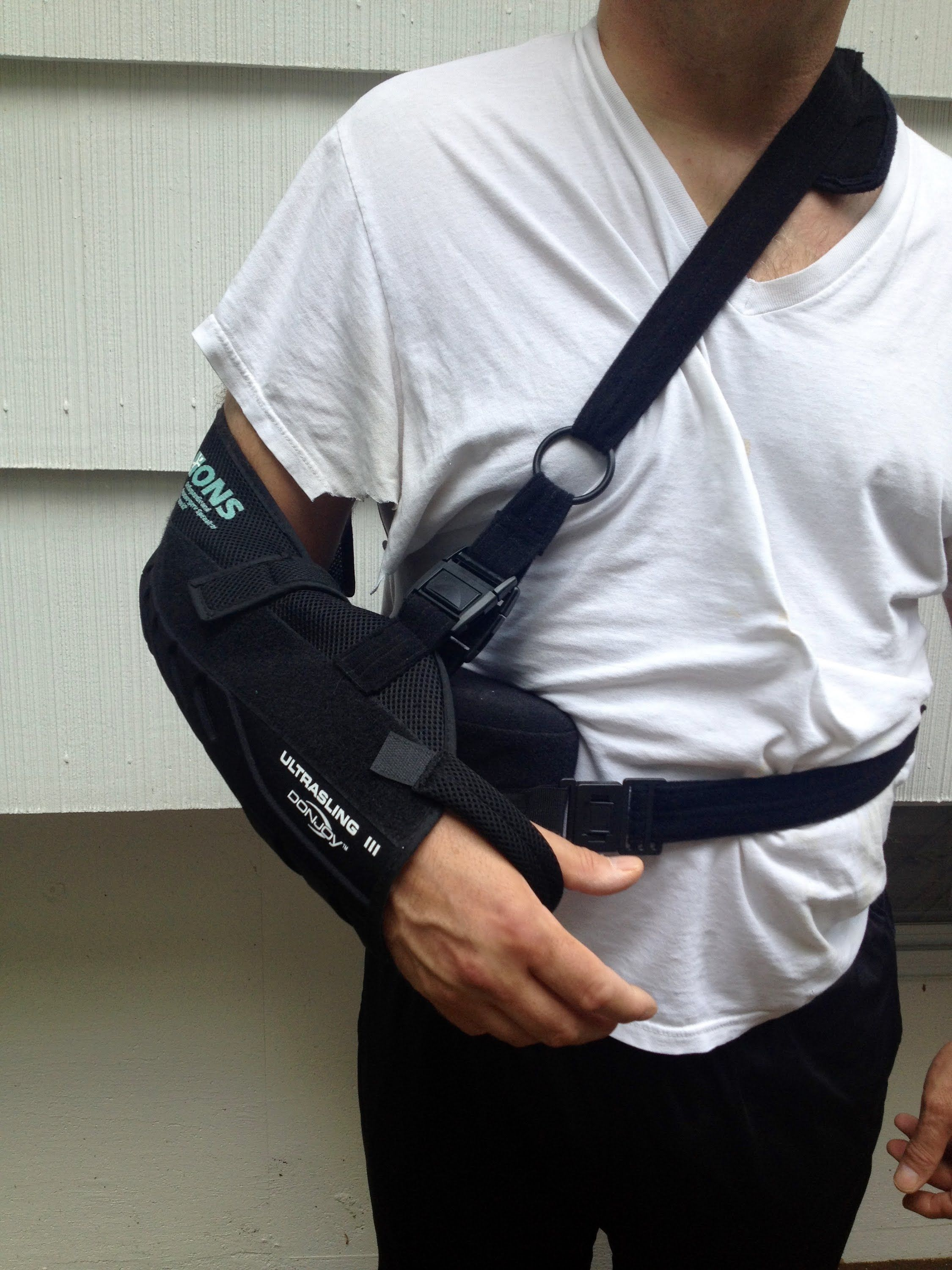 15a4b4515b79 Rotator Cuff Shoulder Surgery Experience - What to Expect, Helpful Tips .